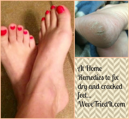 Fix Dry and Cracked Feet