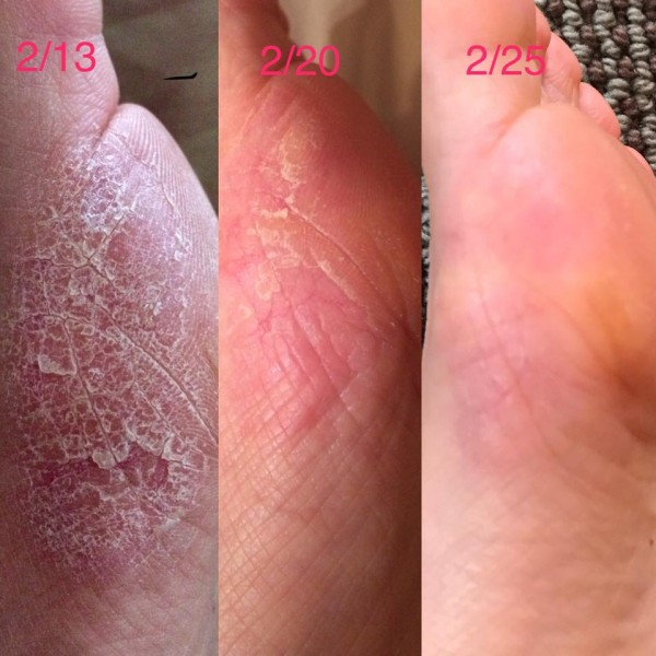 Before and After Lavish Feet