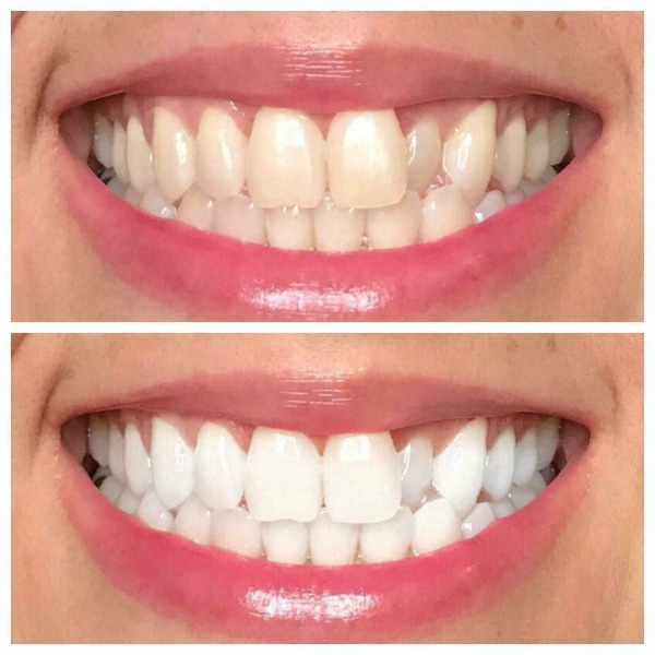 AP 24 Toothpaste before and after